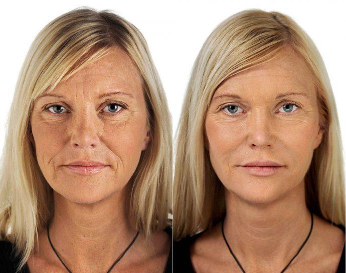 Лицо женщины до и после омоложения