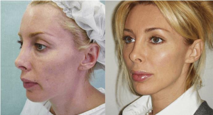 Лицо до и после подтяжки мезонитями