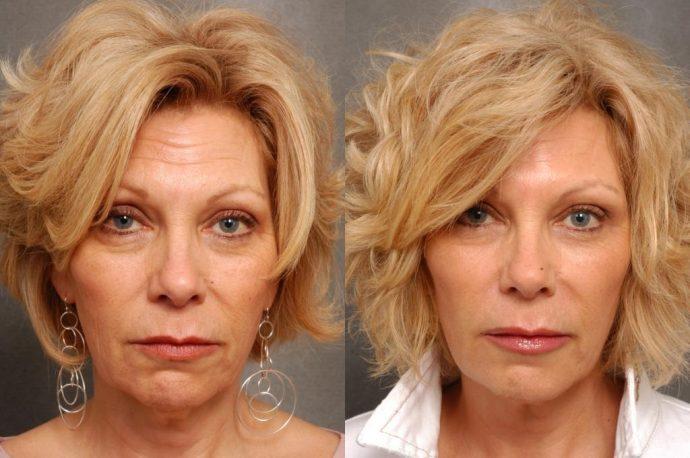Кожа на лице до и после введения мезонитей