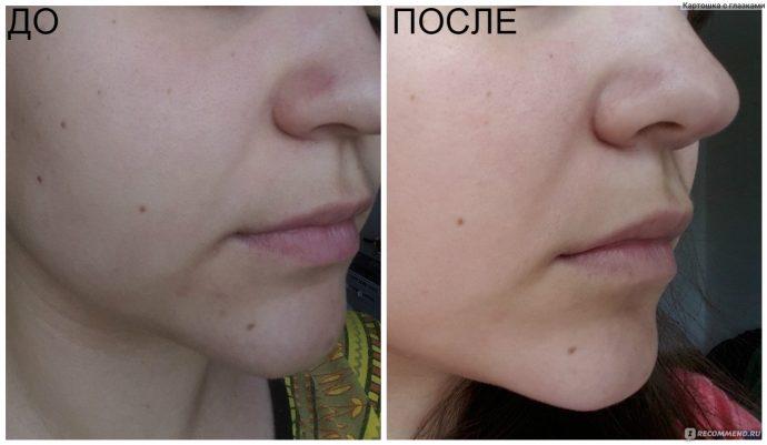 Отзыв и фото до и после применения масла жожоба для лица от морщин вокруг глаз