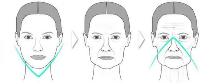 Процесс обвисания участков лица