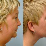 До и после подтяжки лица