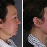 Платизмопластика: фото до и после