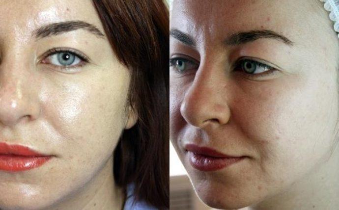 Женское лицо до и после лазерной наноперфорации