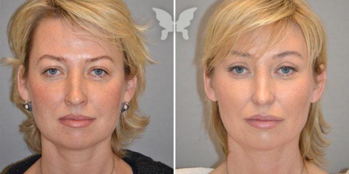 Лицо женщины до и после эндоскопической подтяжки