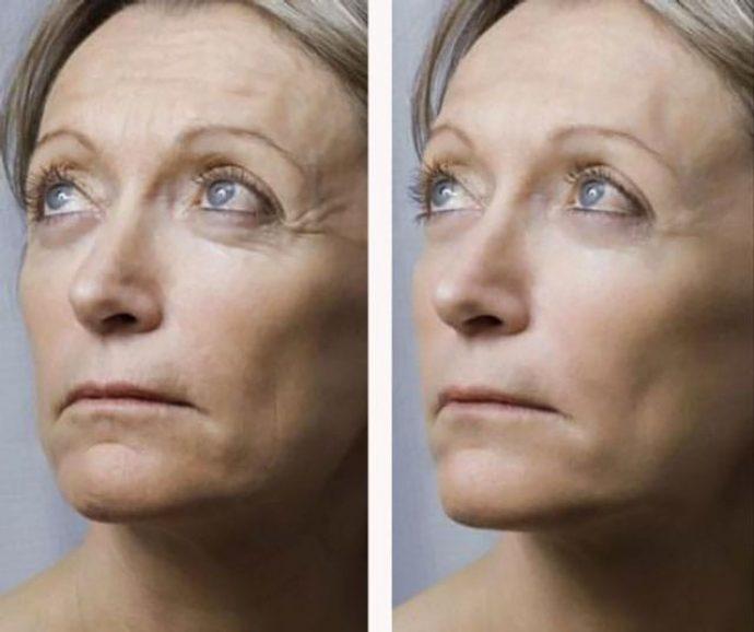 Лицо женщины до и после мезотерапии