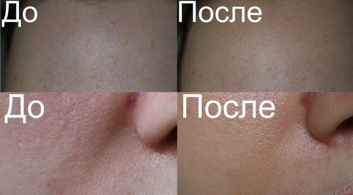 До и после 7-дневного курса использования маски Doliva с гранатом