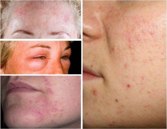 Примеры проявления аллергии