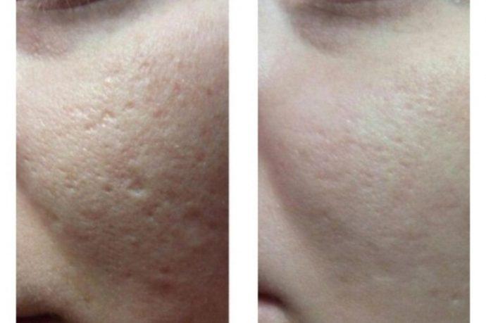 Состояние кожи до и после пилинга